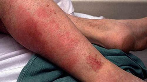 بیماری تب مالت | پیشگیری و درمان