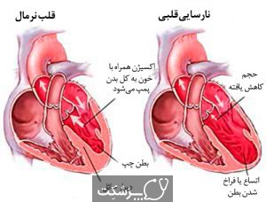 سرطان قلب | پزشکت