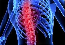 تنگی کانال نخاعی | پزشکت