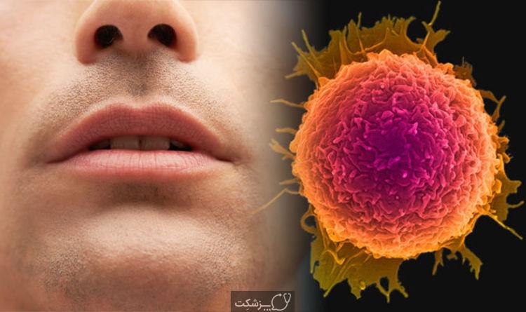 سرطان دهان   پزشکت