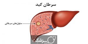 نارسایی کبد | پزشکت