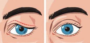 افتادگی پلک | پزشکت