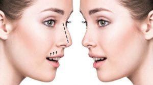عمل جراحی بینی | پزشکت