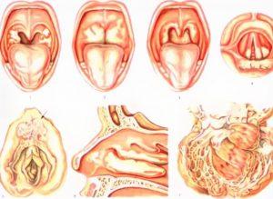 بیماری دیفتری | پزشکت