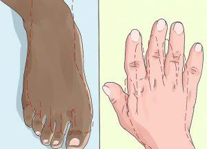 بیماری آکرومگالی | پزشکت