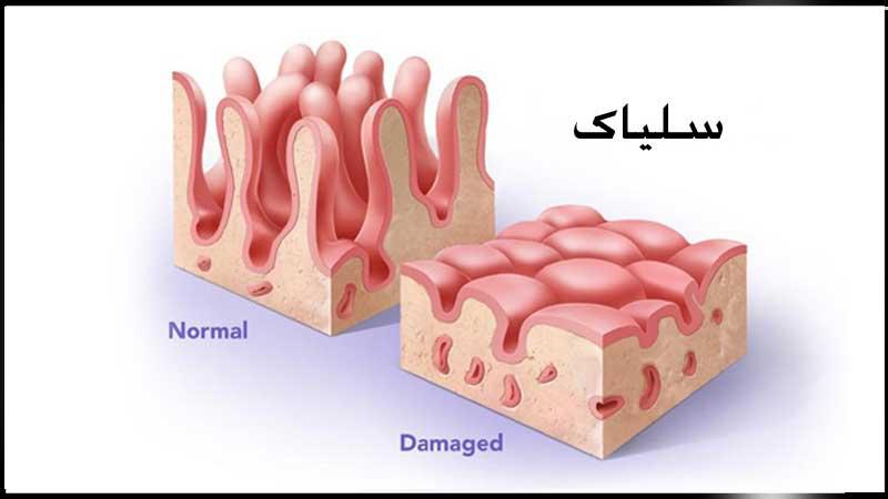 بیماری سلیاک   پزشکت