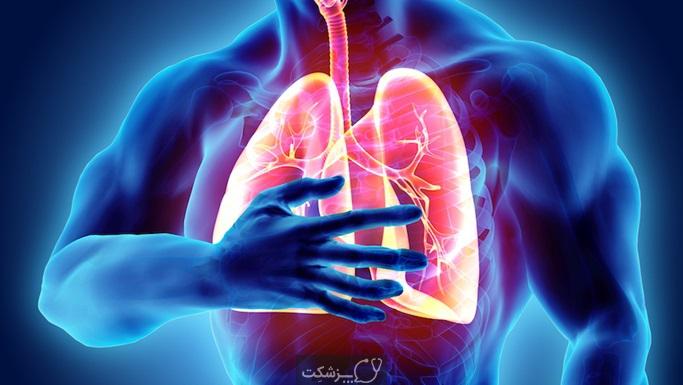 آمبولی ریه | پزشکت