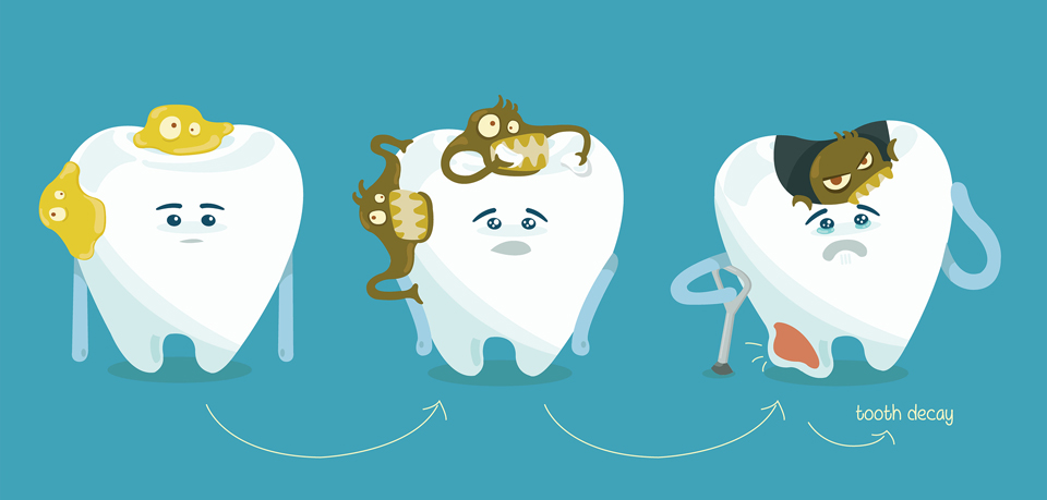 پوسیدگی دندان   پزشکت