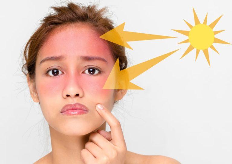 آفتاب سوختگی | پزشکت