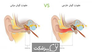 عفونت گوش بزرگسالان   پزشکت