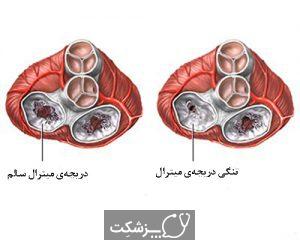 تنگی دریچه میترال | پزشکت