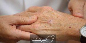 سرطان پوست | پزشکت