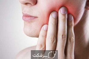 دندان عقل یکی از علل درد در ناحیه فک | پزشکت