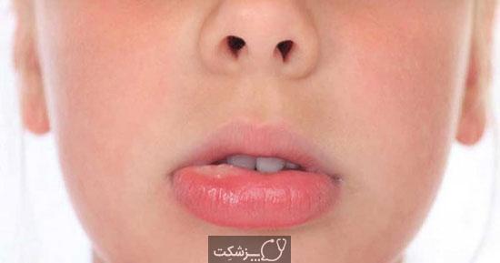 آفت دهان | پزشکت