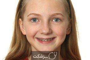 بریس (مکانیزم هدایت صحیح دندان) | پزشکت