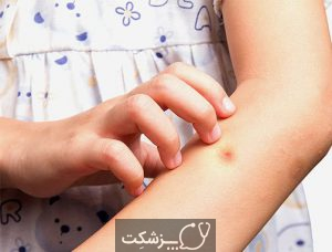 بیماری سالک | پزشکت