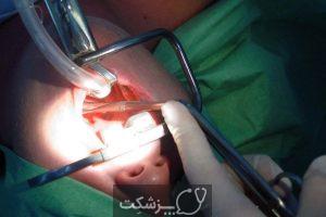 آدنوئید یا لوزه سوم | پزشکت