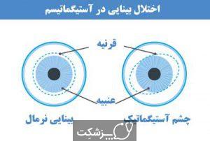 جراحی چشم لیزیک|پزشکت