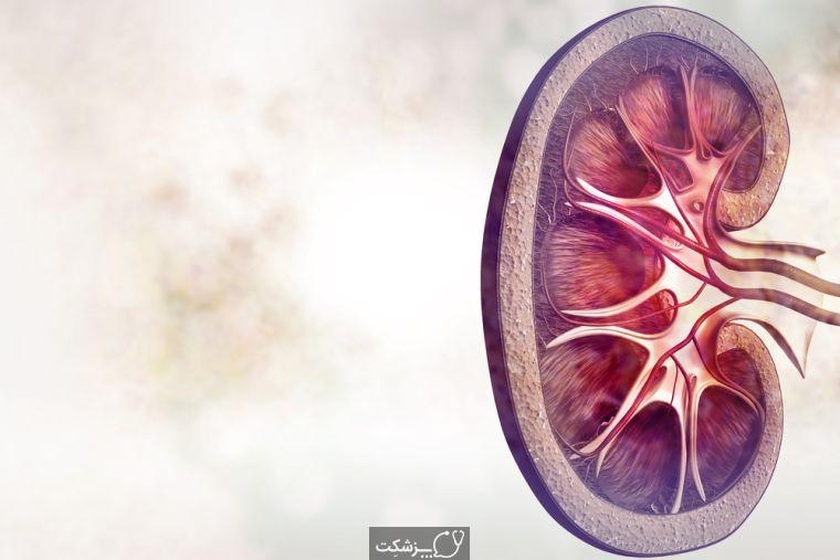 بیماری عفونت کلیه | پزشکت