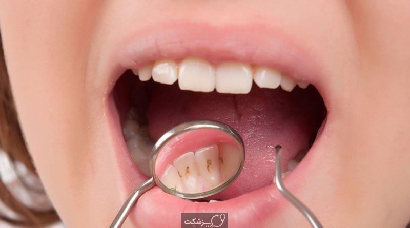 جرم دندان | پزشکت