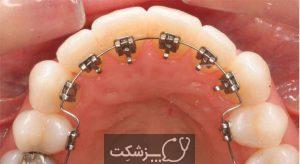بریس های پشت دندانی | پزشکت