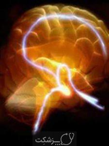 فلج مغزی | پزشکت