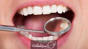 التهاب لثه | پزشکت