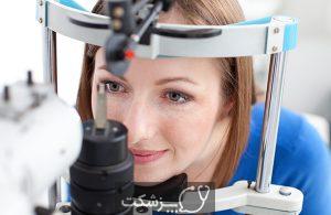جراحی چشم لیزیک | پزشکت