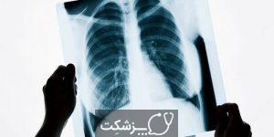 اشعه X قفسه سینه | پزشکت