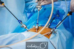 آندومتریوز | پزشکت