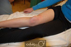 آسیب دیدگی های حاد زانو | پزشکت