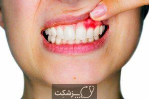 عفونت دندان | پزشکت