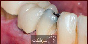 درمان خانگی پوسیدگی دندان   پزشکت