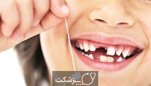 کشیدن دندان شیری | پزشکت