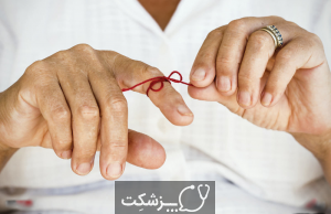 فراموشی | پزشکت