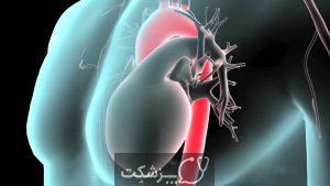 آنوریسم آئورت شکمی | پزشکت