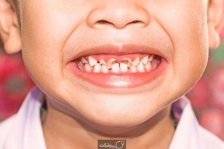 عوارض دندانی دارو ها | پزشکت