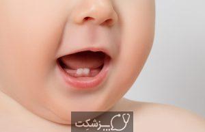 دندان های شیری | پزشکت