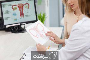 واژینیسموس | پزشکت