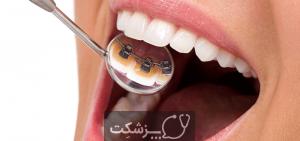نصب بریس های دندان | پزشکت