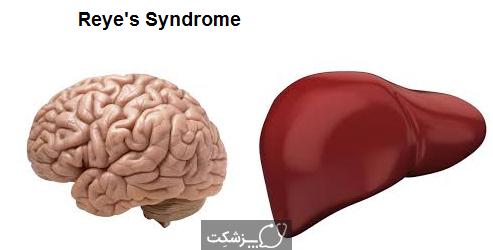 سندروم ری | پزشکت