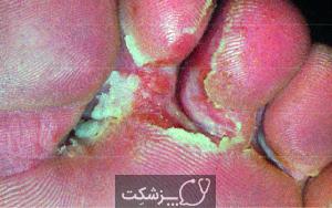 بیماری پای ورزشکار | پزشکت
