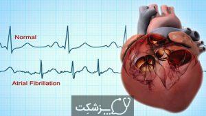 الکتروکاردیوگرام | پزشکت