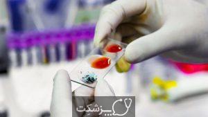 شمارش گلبول های سفید خون | پزشکت