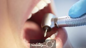 حفره های دندان | پزشکت