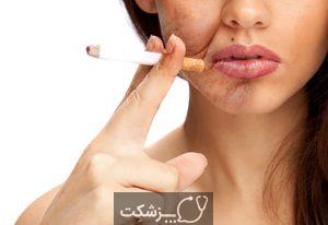 سیگار و سلامتی | پزشکت