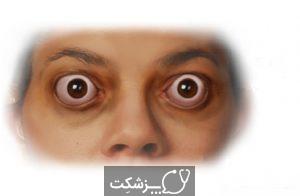 بیماری برون چشمی | پزشکت