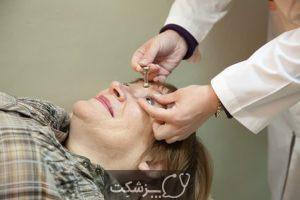 گلوکوما چشم (آب سیاه)   پزشکت