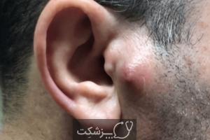 کورک پوستی | پزشکت