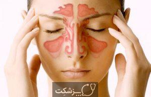 سینوزیت | پزشکت